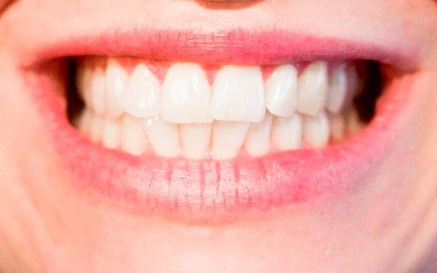 blanqueamiento-clinica-dental-val-monterrei-2
